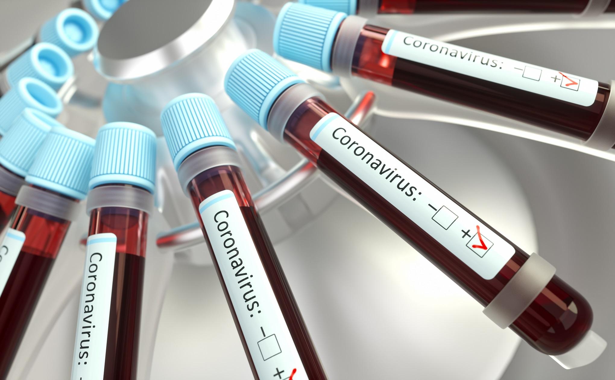 Италия вводит налоговые льготы для смягчения экономической ситуации в связи с коронавирусом
